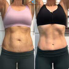 Cutera truSculpt iD Fat Removal Treatments Issaquah Highlands
